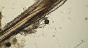Demodex canis mites adjacent to hair root