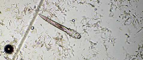 Demodex injai from skin scraping