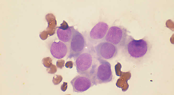 Fine Needle Aspirate Histiocytoma