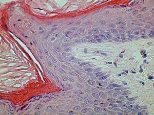 Histology Skin