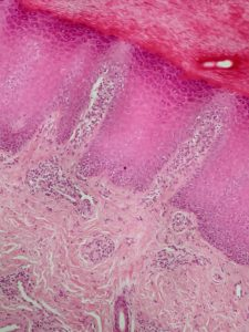 Histopathology - cat with footpad hyperkeratosis