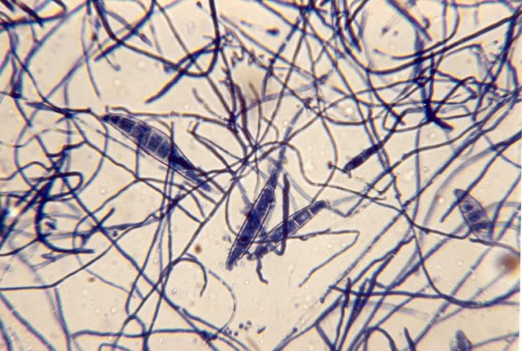 Macroconidia Microsporum Canis