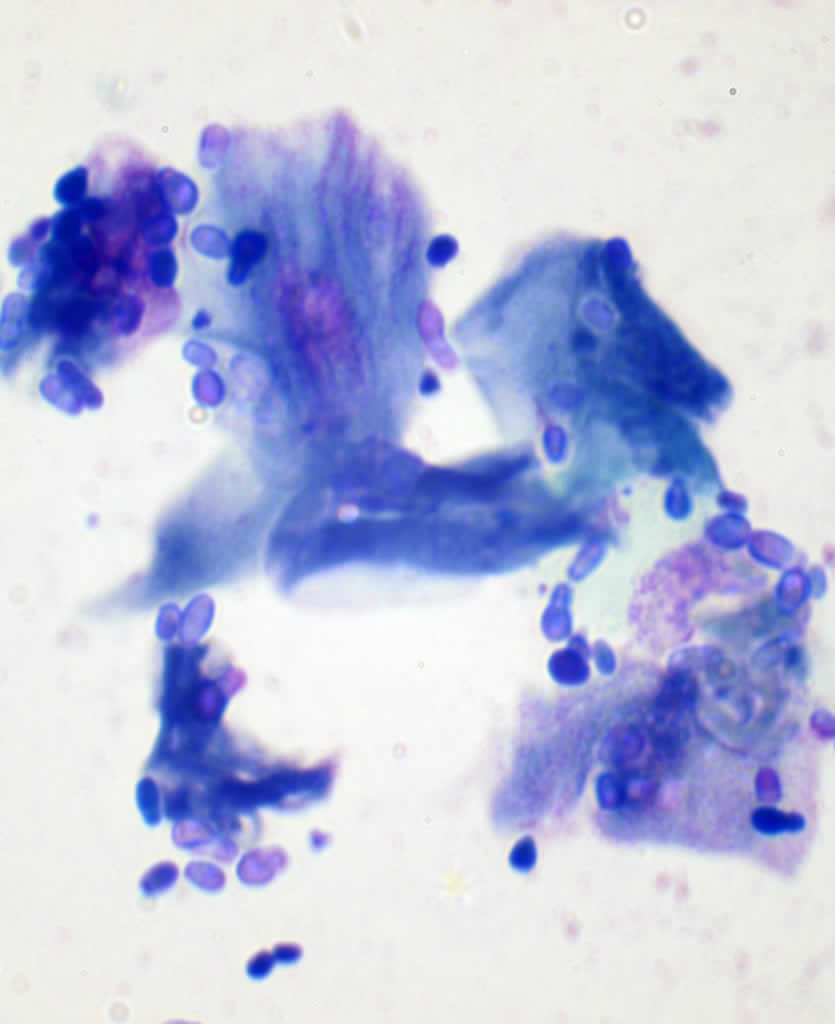 Malassezia organisms under the microscope