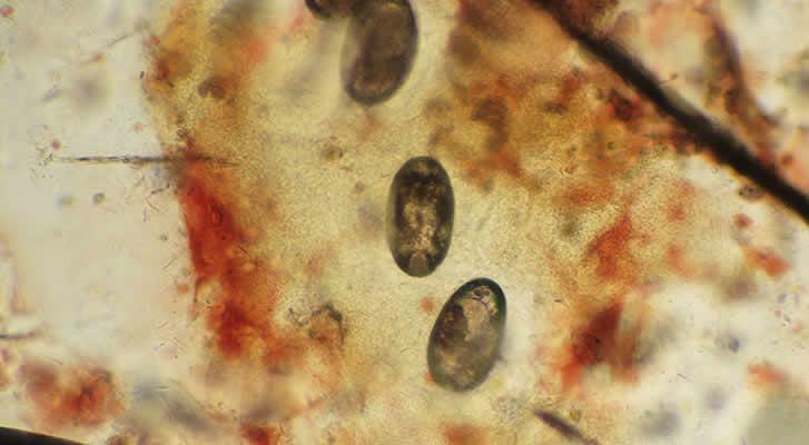 Sarcoptes scabiei eggs