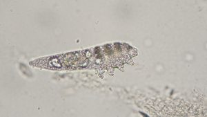 Demodex brevis mite from human face