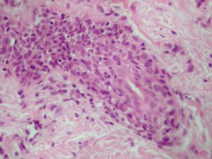 Histopathology High Power Feline Footapd Hyperkeratosis showing lymphocyte reaction around blood vessels