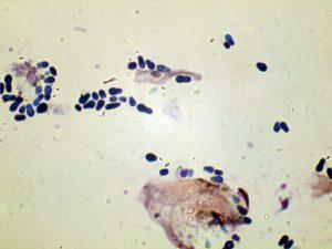 Malassezia Pachydermatits Photomicrograp
