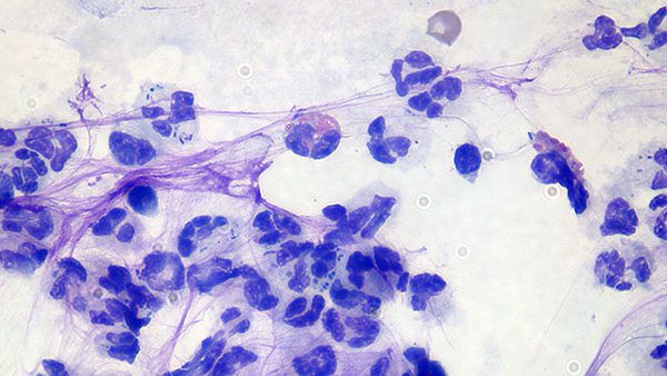 Cytology from GSD Pyoderma. Eosinophils and Neutrophils containing bacterial cocci